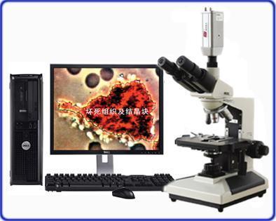 光学显微镜mdi