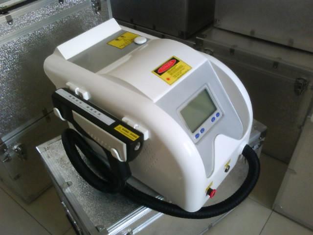 激光洗纹身机图片