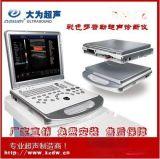 笔记本式彩超机 便携式黑白B超临床彩超诊断 内置锂电池