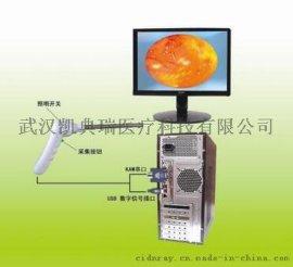 肛肠科USB接口检查系统-----肛门镜、直肠镜、结肠镜