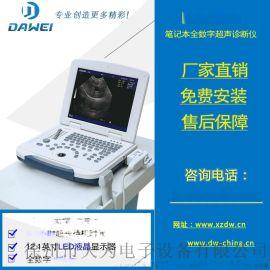 笔记本全数字超声诊断仪.jpg