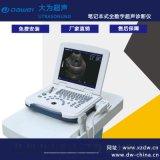黑白超声诊断仪 全数字B超机 便携式B超机 DW-500
