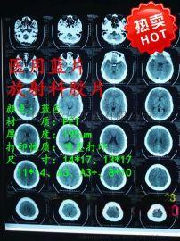 喷墨蓝片|8*10医用蓝片厂家|打印胶片|新型 DR胶片 CT胶片 X光胶片|放射科胶片|