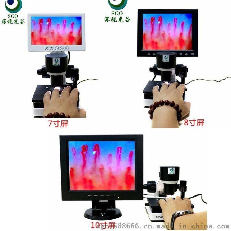 甲襞血液微循环检测仪 xw880无创性的检测 超高清成像图片