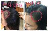 广西巴马小黄姜洗发水能够使头皮充血招代理商