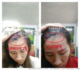 广西巴马茶麸洗发水温馨提示拥有一头健康长发