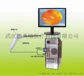 肛腸科USB接口檢查系統-----肛門鏡、直腸鏡、結腸鏡