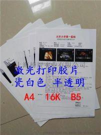 医用彩超加厚喷墨150胶片,适用于医用彩超b超激光A4打印纸