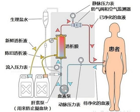 7. 血液透析膜技术【批发价格,厂家,图片,采购】-中国制造网,国初科技(厦门)有限公司