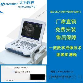 B超机 黑白_B超机 便携式_B超机 笔记本_B超机
