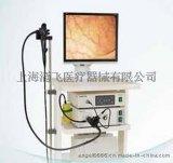 全国热销-欧太电子胃镜OEV-GP166