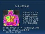 医用热像仪一眼看穿肠胃健康