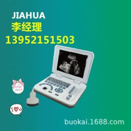 B型超声诊断仪 B超 b型超声诊断仪