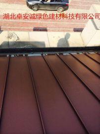 碳铝镁锰板, 65-400铝镁锰合金板