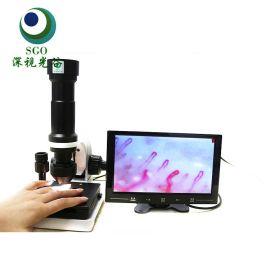 深视光谷 微循环检测仪 检测血液流速 **清检测仪