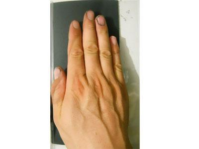 掌纹捺印膜(NY-PIII)