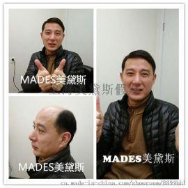 上海中年男士假发套
