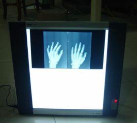 LED医用胶片观察灯