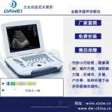 笔记本全数字超声诊断仪