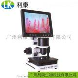 显微镜一滴血检测仪