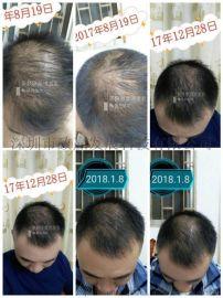广西巴马茶麸洗发水公司坚持使用头发慢慢变黑色