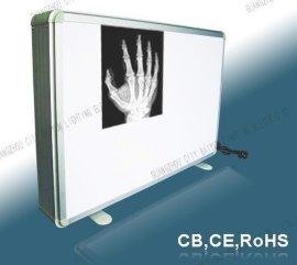 X光胶片观片灯  厂家直销观片灯 高亮度医用观片灯