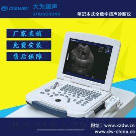 B超机 黑白B超机 笔记本B超机 DW-500