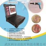 便携式肛肠综合治疗仪