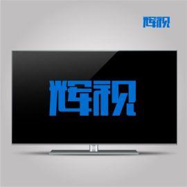 """""""辉视""""-酒店IPTV互动电视系统,功能可定制"""