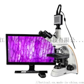 S800T-930HD型HDMI高清输出三目光学生物显微镜 高清带测量拍照