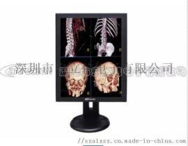 安立信医疗显示器 医用竖屏显示器