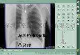 车载订制医用X光机出诊急诊体检便携式X光机