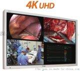 55寸4K医疗腹腔镜监视器FM-C5501DV
