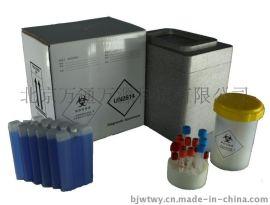 一次性生物样本安全运输箱A01 UN2814类