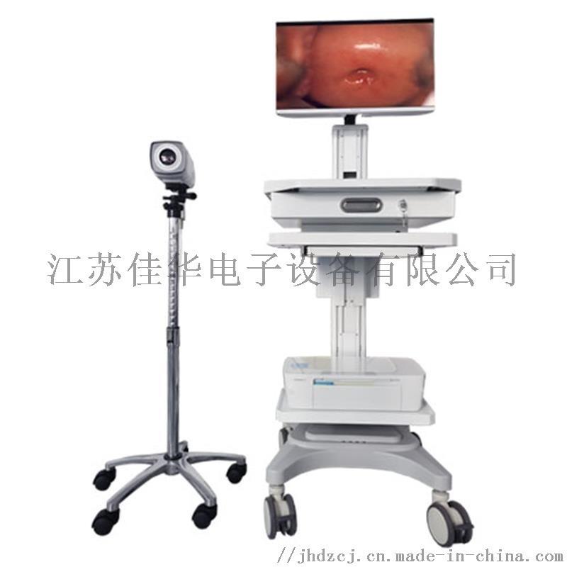 数码电子阴道镜 高清晰度阴道镜报价
