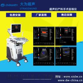 推车式彩超机,彩超机器多少钱一台,全数字彩色多普勒超声诊断仪
