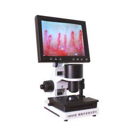 广州利康高清XW880微循环检测仪 末梢血管观察仪 微循环检查仪