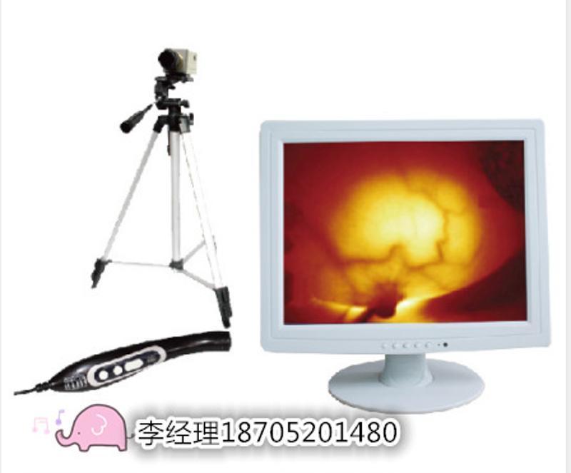 江苏佳华专业生产(加强型)红外乳腺诊断仪 乳透仪厂家