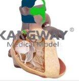 KDF/1007先天性器质性心脏病模型系列