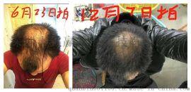 广西巴马小黄姜洗发水能够使头皮充血