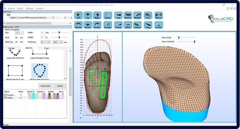 深圳原典科技公司iSoleCAD矯形鞋墊軟體