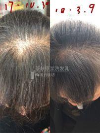 深圳市致赢广西巴马茶麸姜原浆冼发乳让你拥黑头