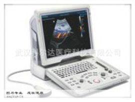迈瑞Z5便携式彩色多普勒超声诊断系统