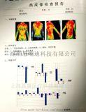 热成像健康检测仪原理
