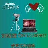 200万像素SONY摄像头国产数码电子阴道镜生产厂家