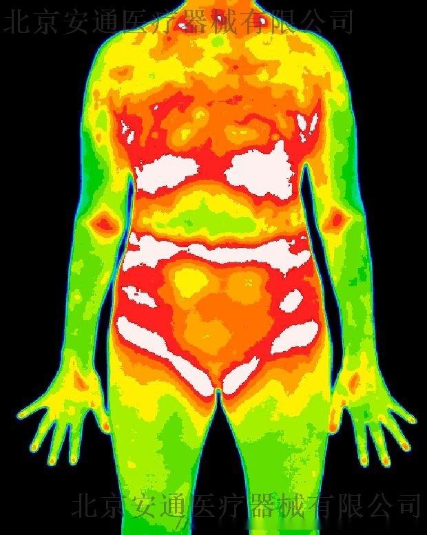 医用红外热成像技术在运动损伤中的应用h824680372