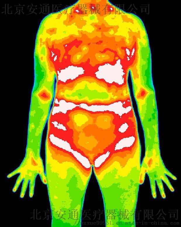 醫用紅外熱成像技術在運動損傷中的應用h824680372